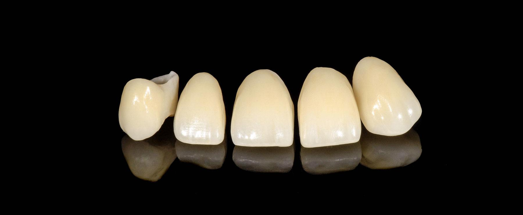 Final_intraoral_sergio_dentalstudiomarialoira