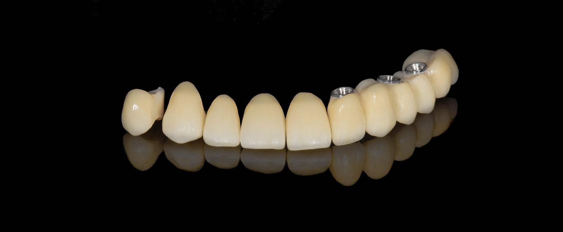 final_intraoral_2_sergio_dentalstudiomarialoira