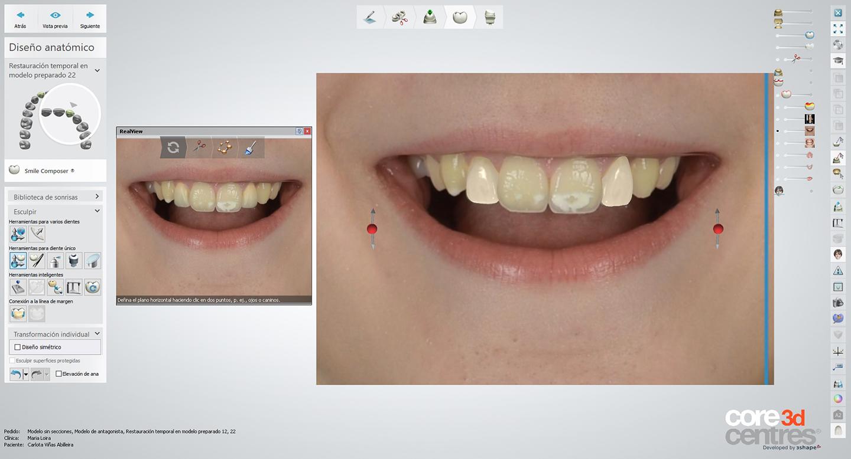 diseno_de_sonrisa_digital_carlota_dentalstudiomarialoira