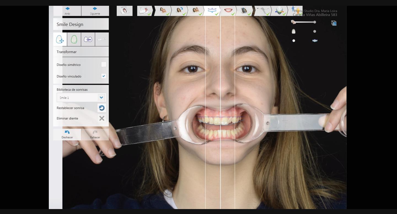 montaje_diseno_de_sonrisa_digital_carlota_dentalstudiomarialoira