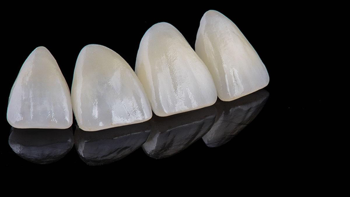 DentalStudio_Cris_closeup