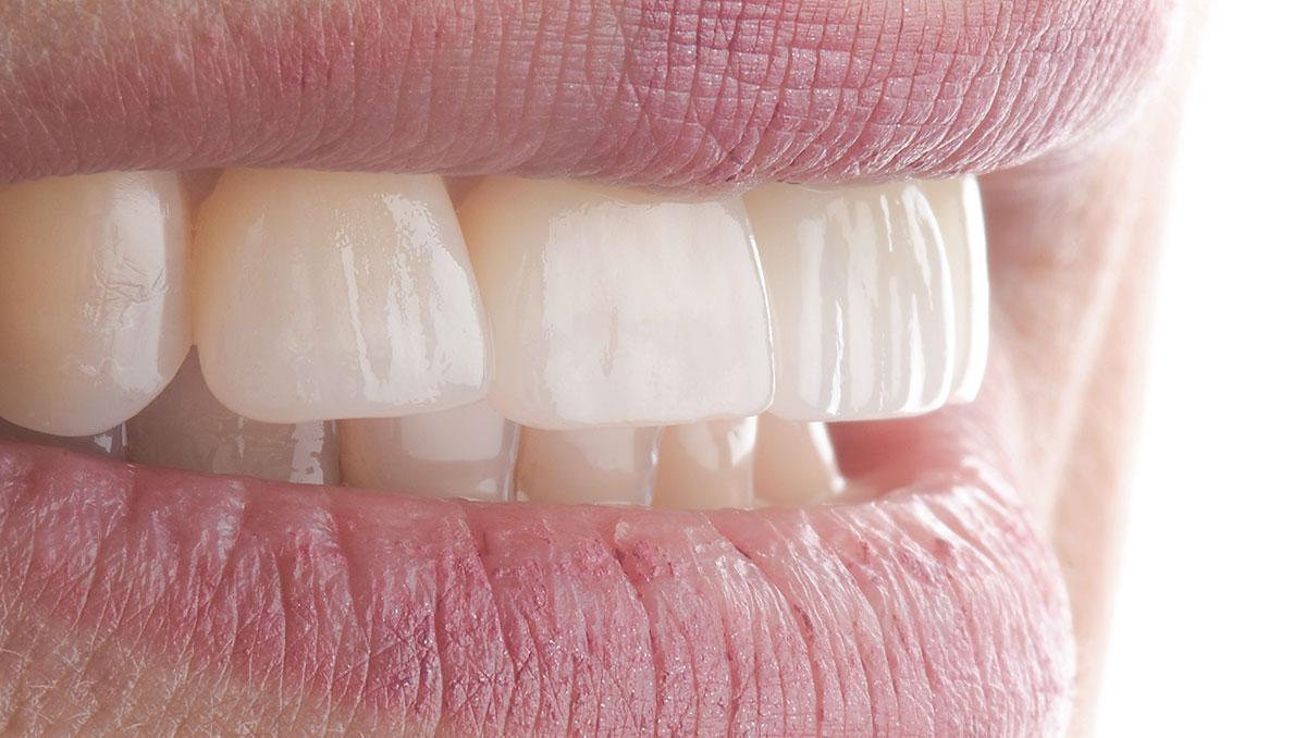 DentalStudio_Cris_piezasterminadas