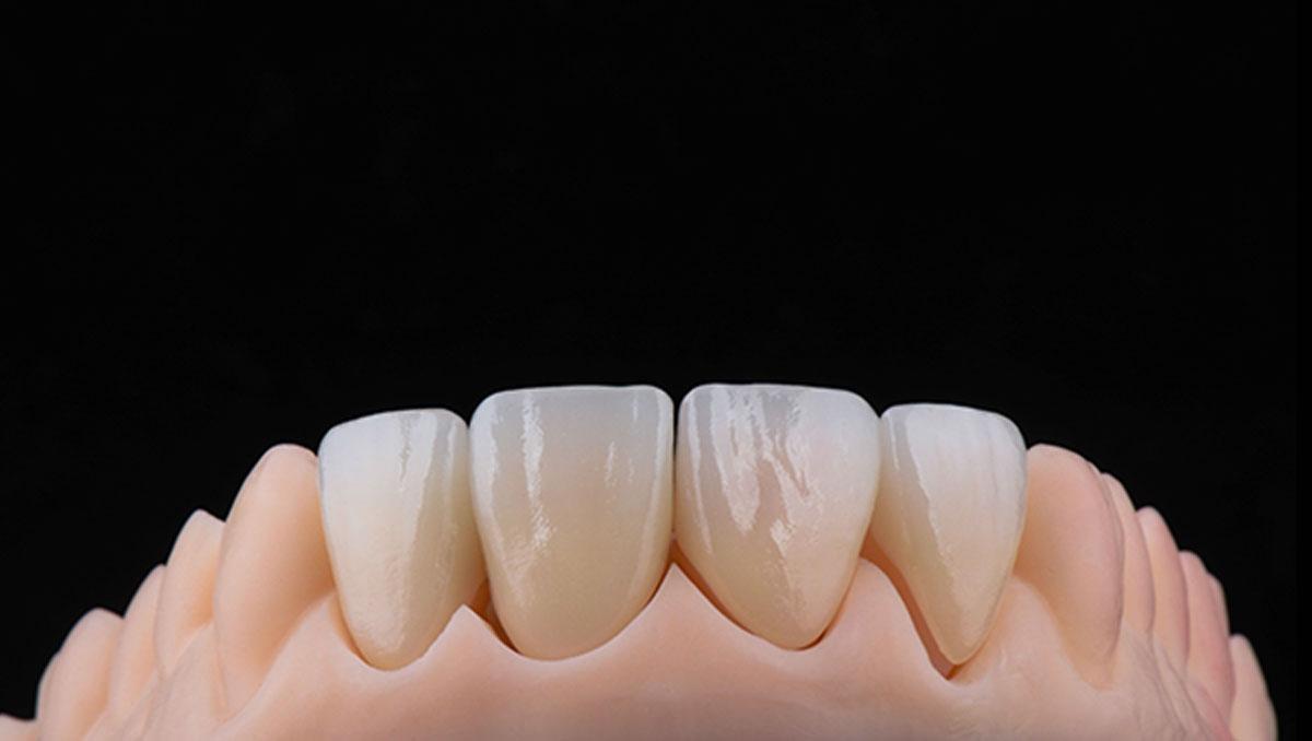 DentalStudio_Cris_piezasterminadas_2